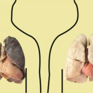 4 продукта, которые очищают легкие: курильщикам обязательно к прочтению!