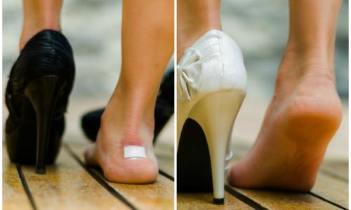 Новая обувь натирает? Легкий способ избежать мозолей