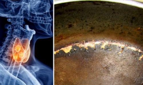В США разгорается скандал вокруг тефлоновой посуды.