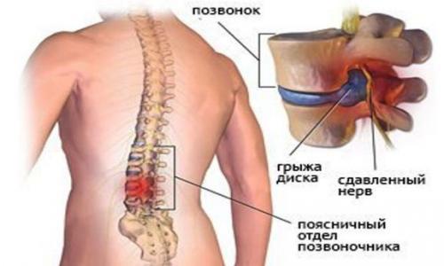 Секрет избавления от боли в спине находится в ваших ногах