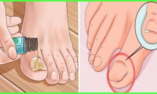 Дезинфицируйте грибок и бактерии пальцев ног с помощью средства для полоскания рта