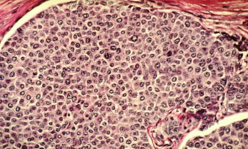 Создан препарат против невосприимчивого к лечению рака