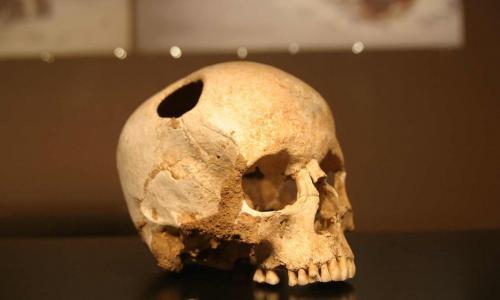 В 15-м веке инки проводили трепанации лучше хирургов 19-го века