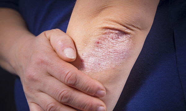 Заболевание кожи: заразна экзема или нет?