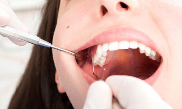 Ученые из США изучают связь COVID-19 и выпадения зубов